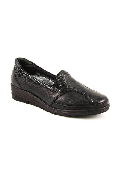 25109 Kadın Siyah Deri Kemik Çıkıntısına Özel Comfort Ayakkabı