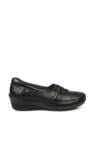 Kadın Siyah Deri Kemik Çıkıntısına Özel Comfort Ayakkabı 26217