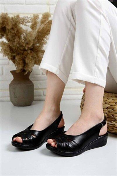 Kadın Siyah Ortopedik Sandalet