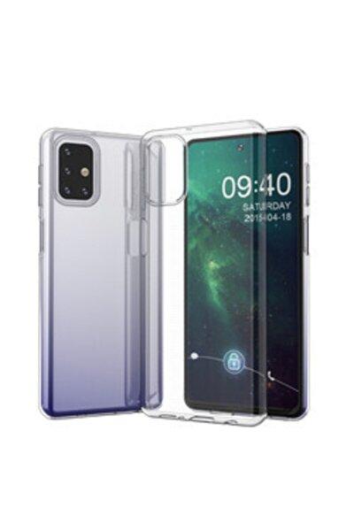 Samsung Galaxy M51 Şeffaf Tam Koruma Silikon Kılıf
