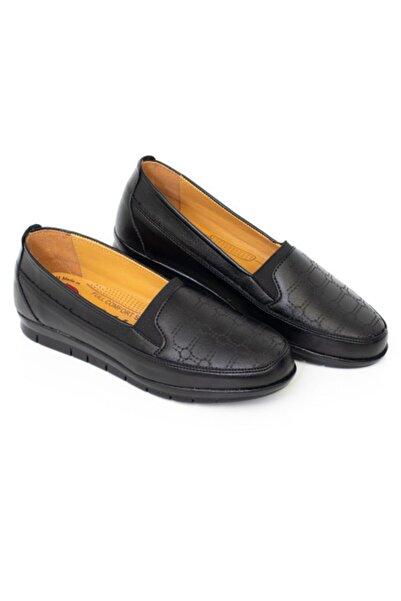 Full Confort Ortapedik Yüksek Taban Esnek Rahat Içi Deri Siyah Anne Ayakkabısı