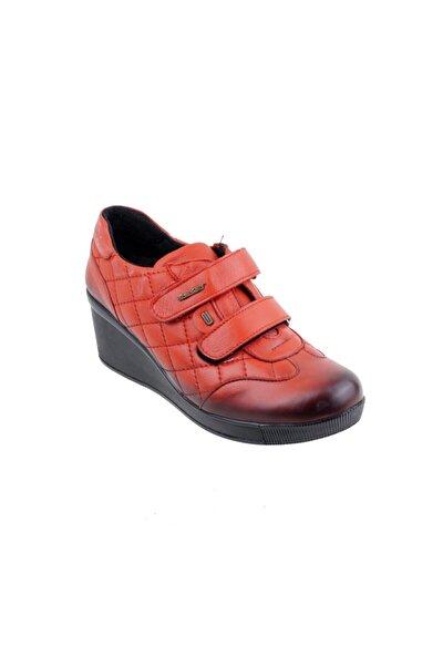 157384 Deri Ortopedi Bayan Ayakkabı