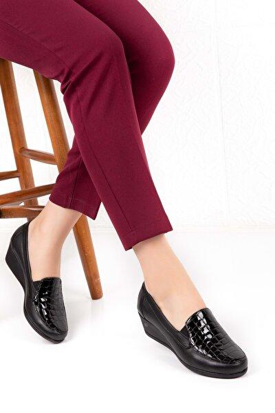Kadın Siyah Hakiki Deri Ortopedik Taban Ayakkabı Vdt.2606