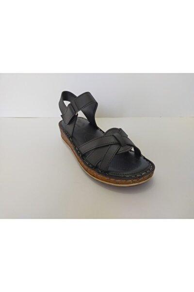 Kadın Siyah Ortapedik Sandalet
