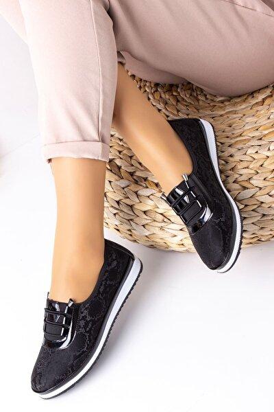 Siyah Günlük Ortopedik Desenli Ayakkabı