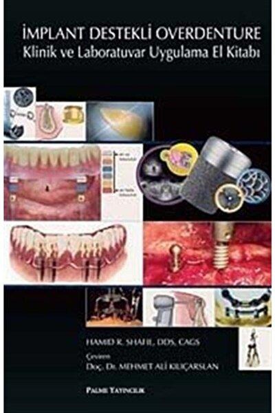 Implant Destekli Overdenture & Klinik Ve Laboratuvar Uygulama El Kitabı