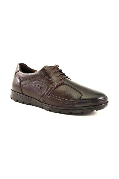 32605 Erkek Kahve Deri Kemik Çıkıntısına Özel Ayakkabı