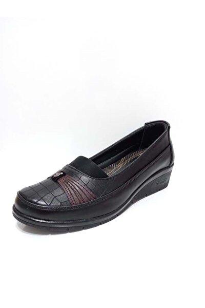 Ortopedik Anne Ayakkabısı