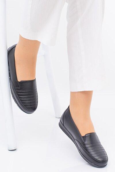Kadın  Siyah Ortopedık Ayakkabısı