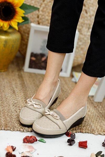 A10 Vizon Ortopedik Anne Ayakkabı