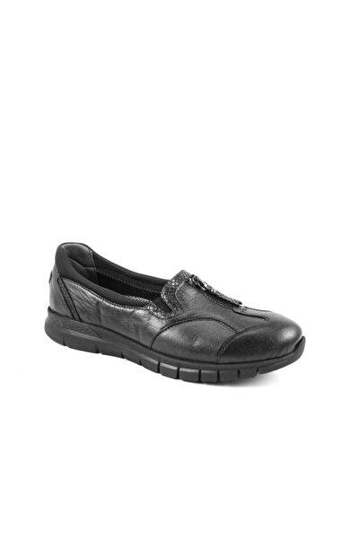 29444 Kadın Siyah Deri Kemik Çıkıntısına Özel Comfort Ayakkabı