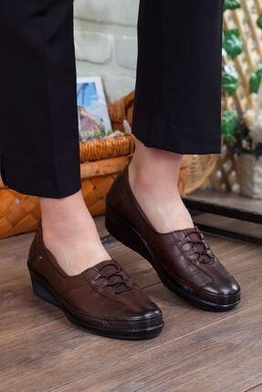 Forelli Kadın Ortopedik Ayakkabı