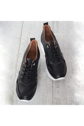 Sıyah Cılt Kadın Spor Ayakkabı 34111658-1