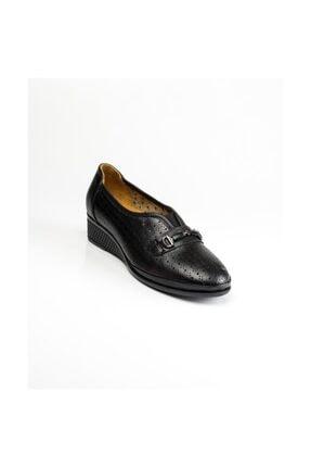 Scavia 117 Siyah Dolgu Topuk Günlük Ayakkabı